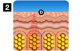 Patenterad nano-teknologi bild 2